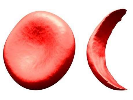 Research articles on sickle cell disease